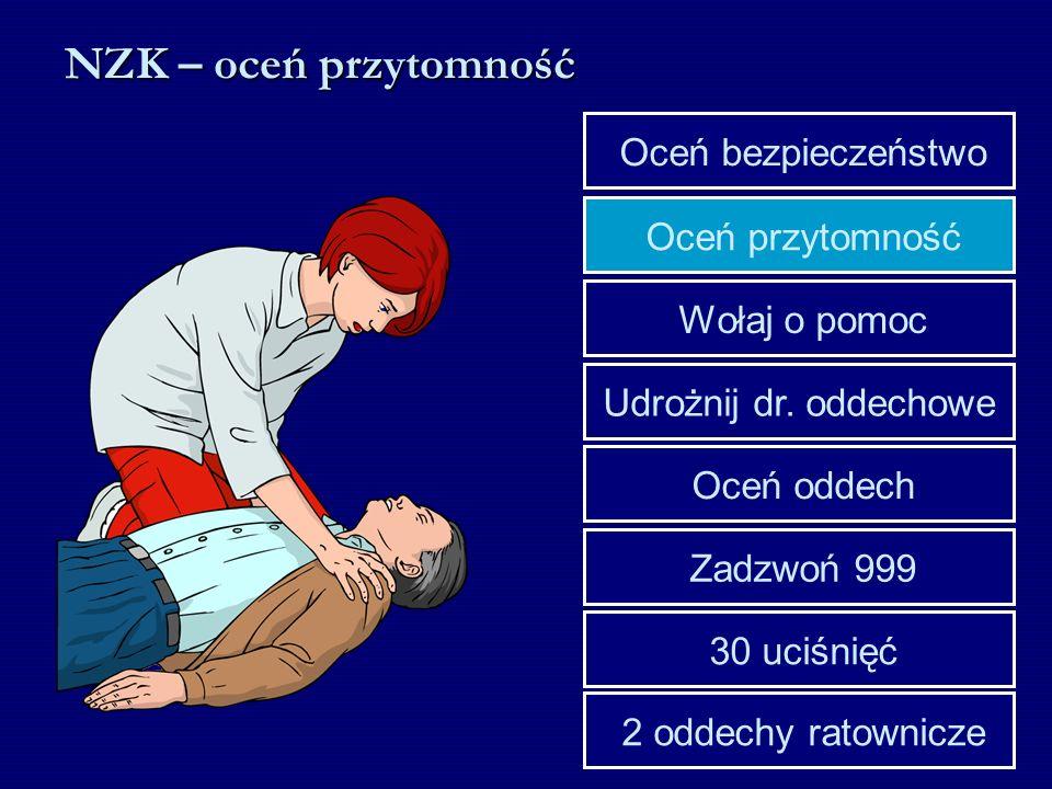 NZK – oceń przytomność Udrożnij dr. oddechowe Wołaj o pomoc Oceń przytomność Oceń bezpieczeństwo 30 uciśnięć Zadzwoń 999 Oceń oddech 2 oddechy ratowni