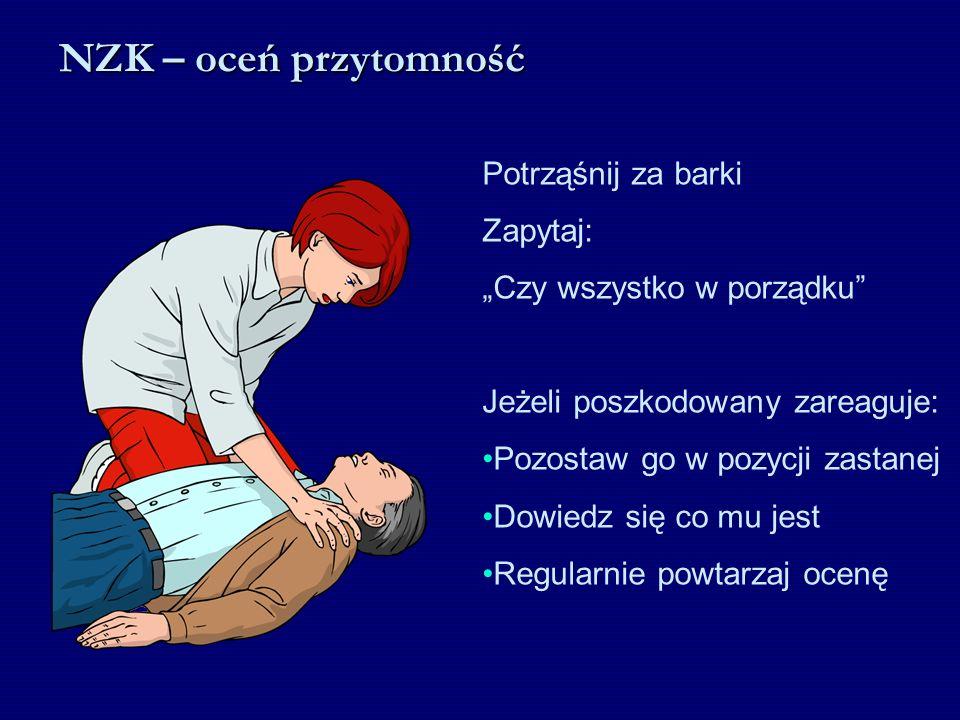 NZK – kontynuuj RKO 30 2 Co około 2 minuty ratownicy powinni się zmieniać i wykonywać RKO osobiście (w pojedynkę)