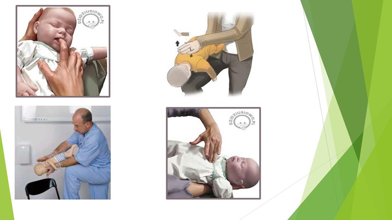 Pierwsza pomoc:  ułóż dziecko na plecach z nogami uniesionymi do góry (powyżej głowy),,  rozluźnij kołnierzyk, pasek,  udrożnij drogi oddechowe,  w razie wymiotów odchyl głowę, aby zapobiec zachłyśnięciu,  nie podawaj doustnie żadnych płynów,  kontroluj czynności życiowe,  jeżeli po 10 minutach nie powróci przytomność, ułóż dziecko w pozycji bocznej ustalonej i wezwij karetkę.