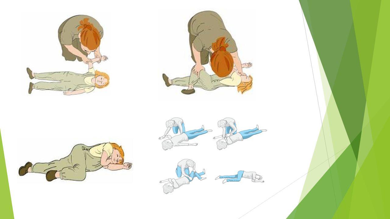DRGAWKI GORĄCZKOWE  Objawy: występują w związku z gorączką nie wynikającą z infekcji ośrodkowego układu nerwowego, zdarzają się u 4% dzieci w wieku 6 mies.