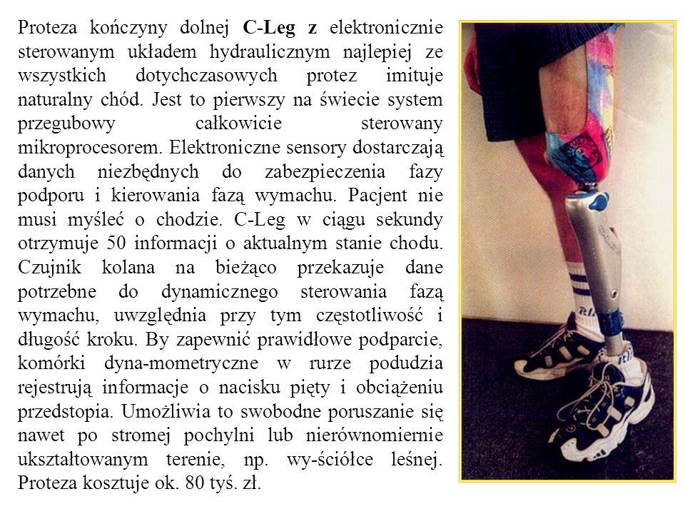 Proteza kończyny dolnej C-Leg z elektronicznie sterowanym układem hydraulicznym najlepiej ze wszystkich dotychczasowych protez imituje naturalny chód