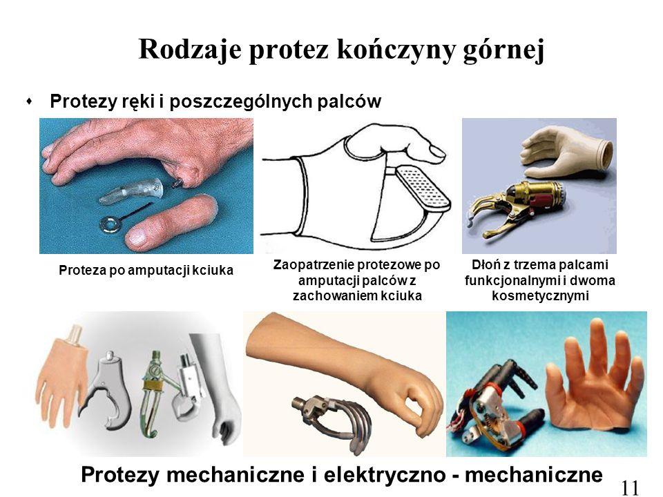 Rodzaje protez kończyny górnej  Protezy ręki i poszczególnych palców Proteza po amputacji kciuka Zaopatrzenie protezowe po amputacji palców z zachowa