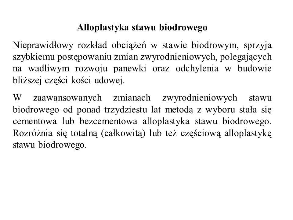 Alloplastyka stawu biodrowego Nieprawidłowy rozkład obciążeń w stawie biodrowym, sprzyja szybkiemu postępowaniu zmian zwyrodnieniowych, polegających n