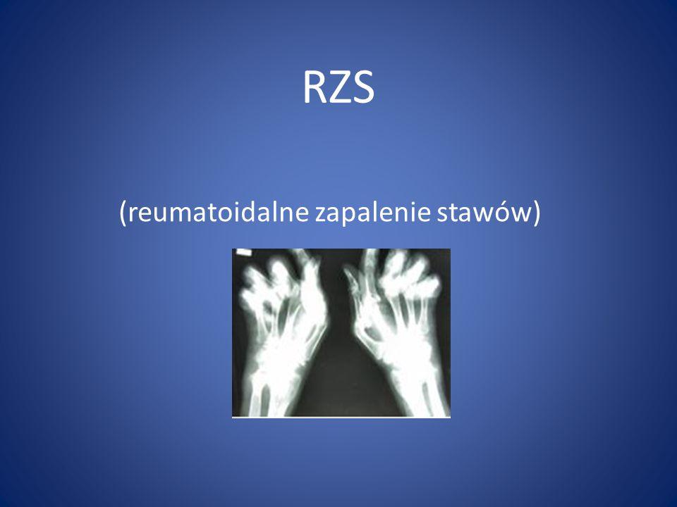 RZS (reumatoidalne zapalenie stawów)