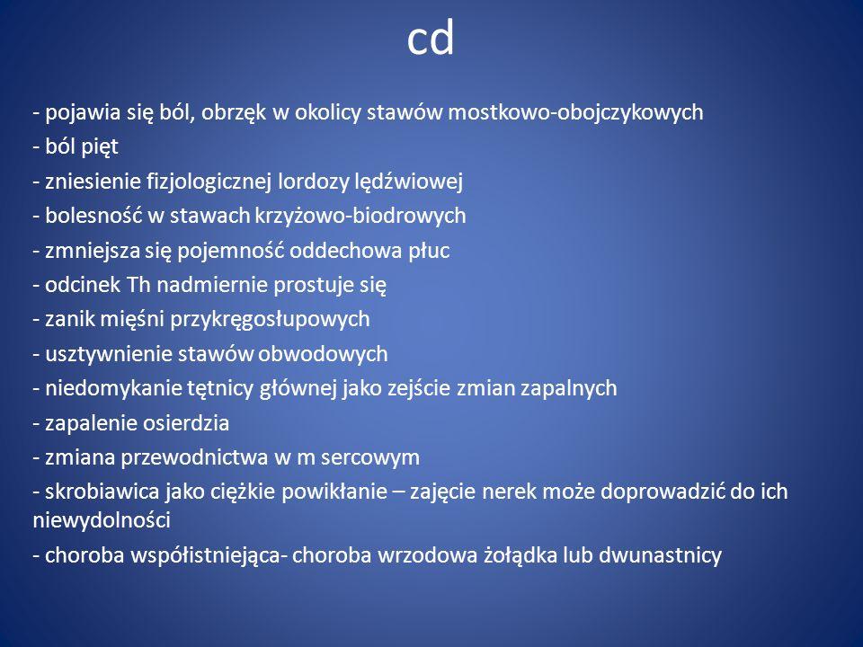 cd - pojawia się ból, obrzęk w okolicy stawów mostkowo-obojczykowych - ból pięt - zniesienie fizjologicznej lordozy lędźwiowej - bolesność w stawach k