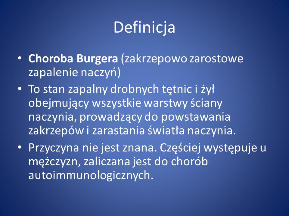 Definicja Choroba Burgera (zakrzepowo zarostowe zapalenie naczyń) To stan zapalny drobnych tętnic i żył obejmujący wszystkie warstwy ściany naczynia,