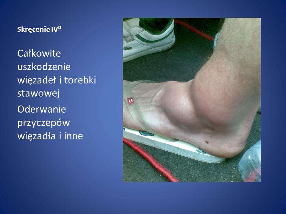 Skręcenie IV⁰ Całkowite uszkodzenie więzadeł i torebki stawowej Oderwanie przyczepów więzadła i inne