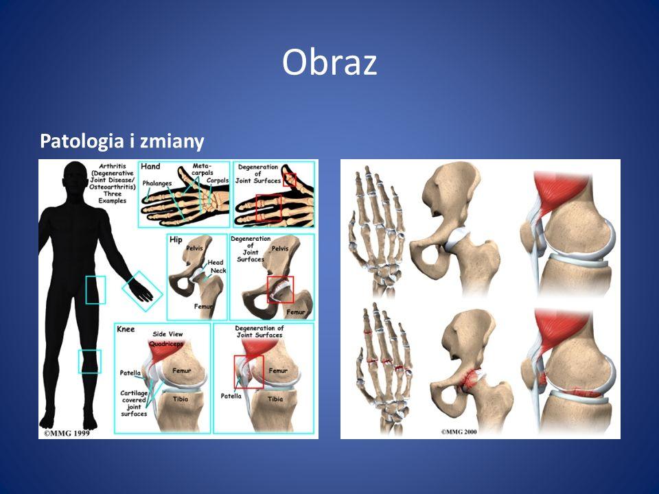 Przebieg Choroba przebiega w 4 okresach: Okres I - w badaniu RTG widoczne obrzęki tkanek miękkich, niewielkie zwężenie szpar stawowych, osteoporoza przynasadowa Okres II - wyraźne zwężenie szpar stawowych, w częściach przynasadowych kości widoczne geody zapalne oraz pojedyncze nadżerki na powierzchniach stawowych Okres III - rozwój geod i nadżerek, podwichnięcia i zniekształcenia stawów, przeprosty, zapalenie ścięgien.