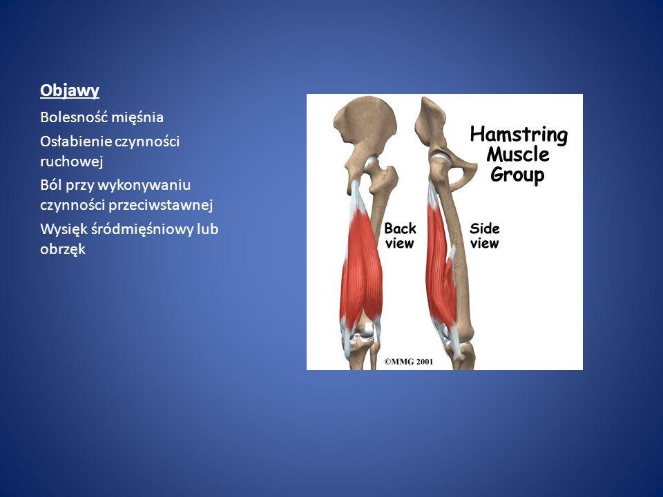 Objawy Bolesność mięśnia Osłabienie czynności ruchowej Ból przy wykonywaniu czynności przeciwstawnej Wysięk śródmięśniowy lub obrzęk