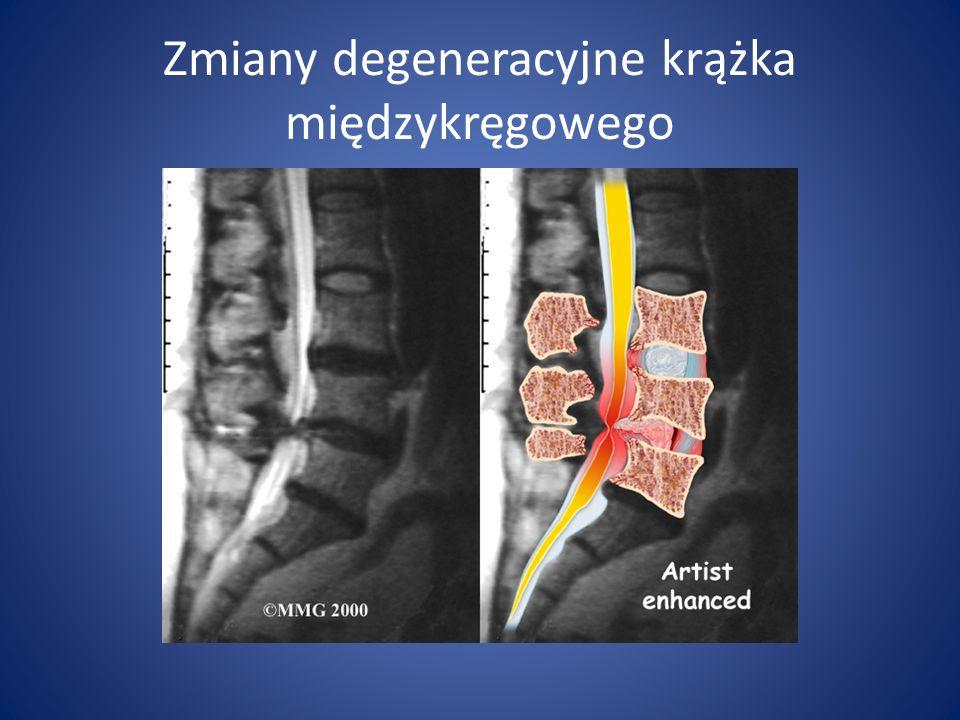 Zmiany degeneracyjne krążka międzykręgowego