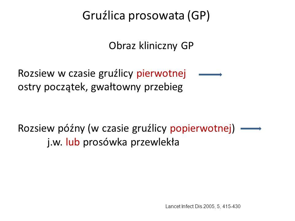 Gruźlica prosowata (GP) Obraz kliniczny GP Rozsiew w czasie gruźlicy pierwotnej ostry początek, gwałtowny przebieg Rozsiew późny (w czasie gruźlicy popierwotnej) j.w.