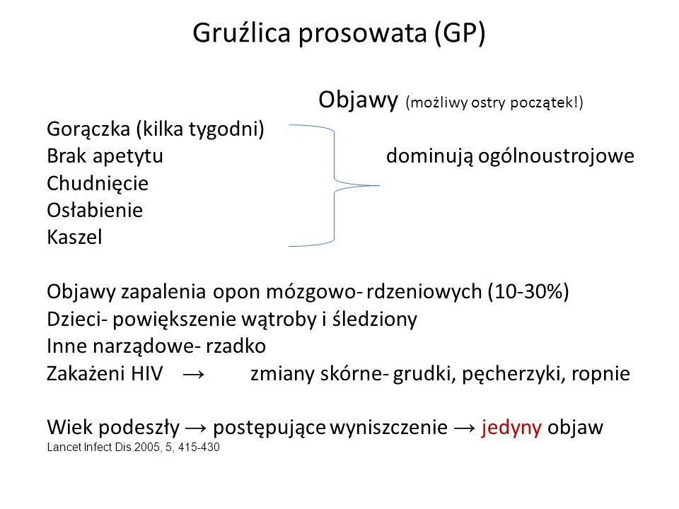 Gruźlica prosowata (GP) Objawy (możliwy ostry początek!) Gorączka (kilka tygodni) Brak apetytudominują ogólnoustrojowe Chudnięcie Osłabienie Kaszel Ob
