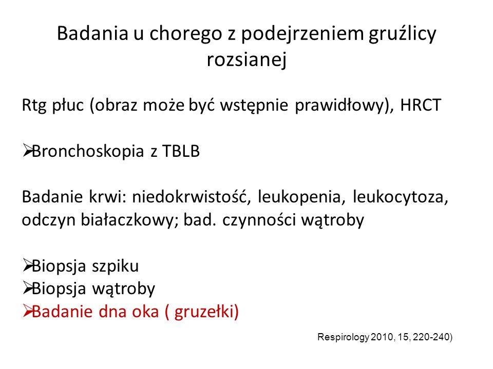 Badania u chorego z podejrzeniem gruźlicy rozsianej Rtg płuc (obraz może być wstępnie prawidłowy), HRCT  Bronchoskopia z TBLB Badanie krwi: niedokrwistość, leukopenia, leukocytoza, odczyn białaczkowy; bad.