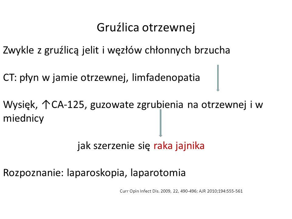 Gruźlica otrzewnej Zwykle z gruźlicą jelit i węzłów chłonnych brzucha CT: płyn w jamie otrzewnej, limfadenopatia Wysięk, ↑CA-125, guzowate zgrubienia