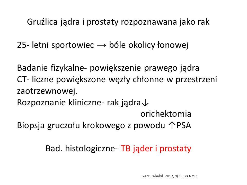 Gruźlica jądra i prostaty rozpoznawana jako rak 25- letni sportowiec → bóle okolicy łonowej Badanie fizykalne- powiększenie prawego jądra CT- liczne powiększone węzły chłonne w przestrzeni zaotrzewnowej.
