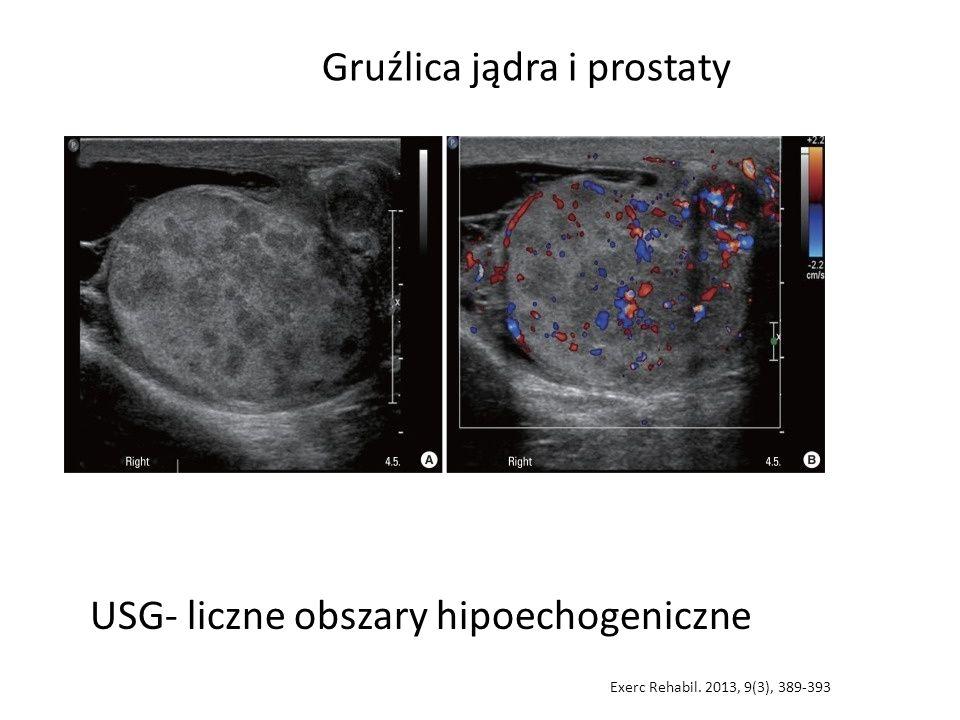 USG- liczne obszary hipoechogeniczne Gruźlica jądra i prostaty Exerc Rehabil. 2013, 9(3), 389-393