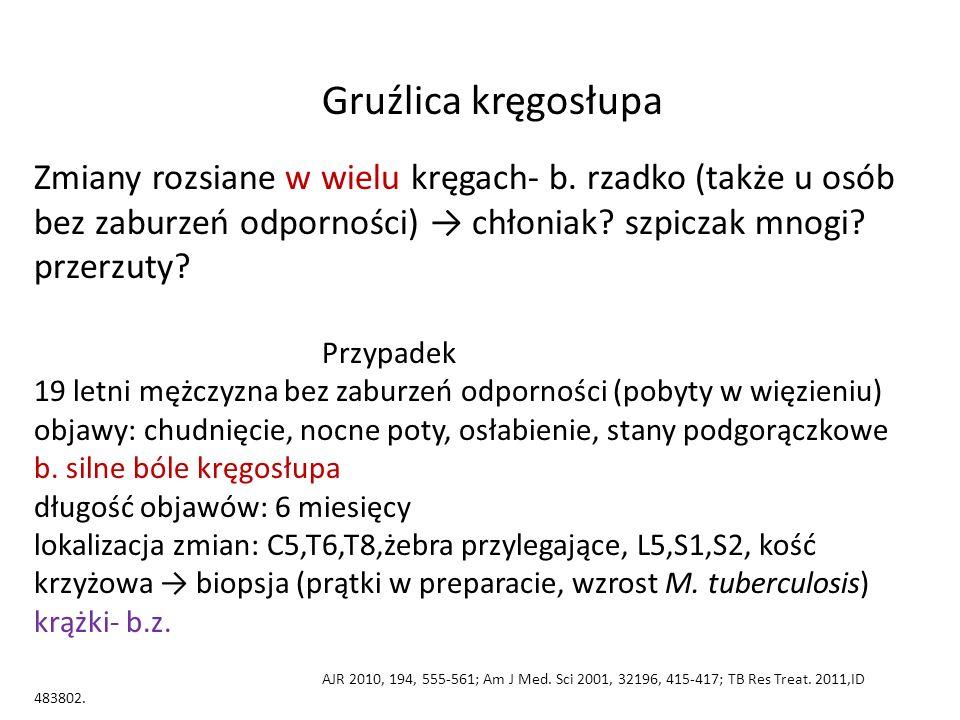 Gruźlica kręgosłupa Zmiany rozsiane w wielu kręgach- b. rzadko (także u osób bez zaburzeń odporności) → chłoniak? szpiczak mnogi? przerzuty? Przypadek