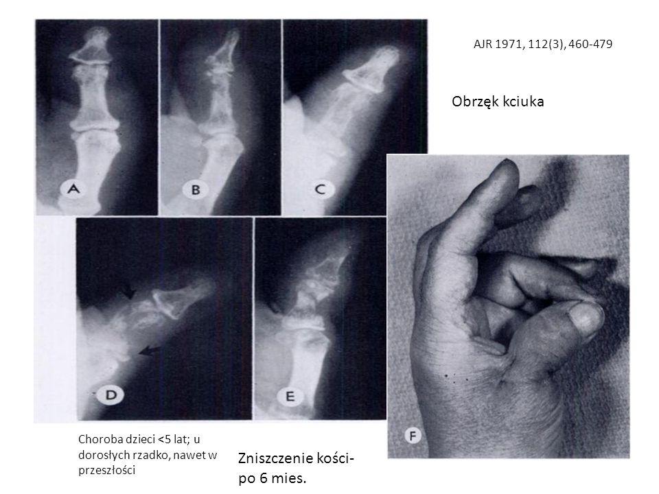 Choroba dzieci <5 lat; u dorosłych rzadko, nawet w przeszłości AJR 1971, 112(3), 460-479 Obrzęk kciuka Zniszczenie kości- po 6 mies.