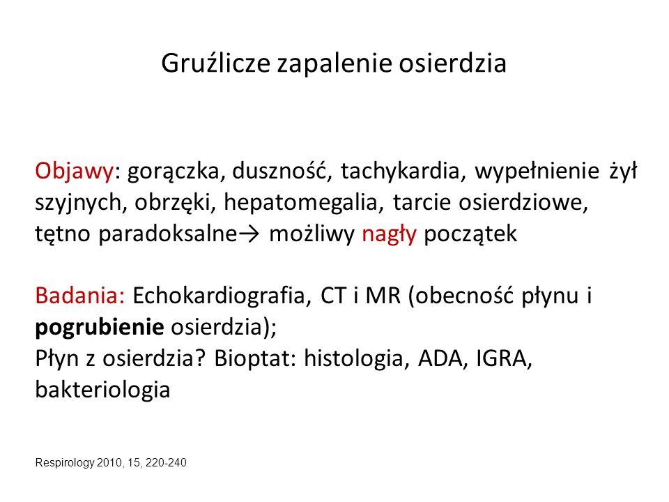Gruźlicze zapalenie osierdzia Objawy: gorączka, duszność, tachykardia, wypełnienie żył szyjnych, obrzęki, hepatomegalia, tarcie osierdziowe, tętno par