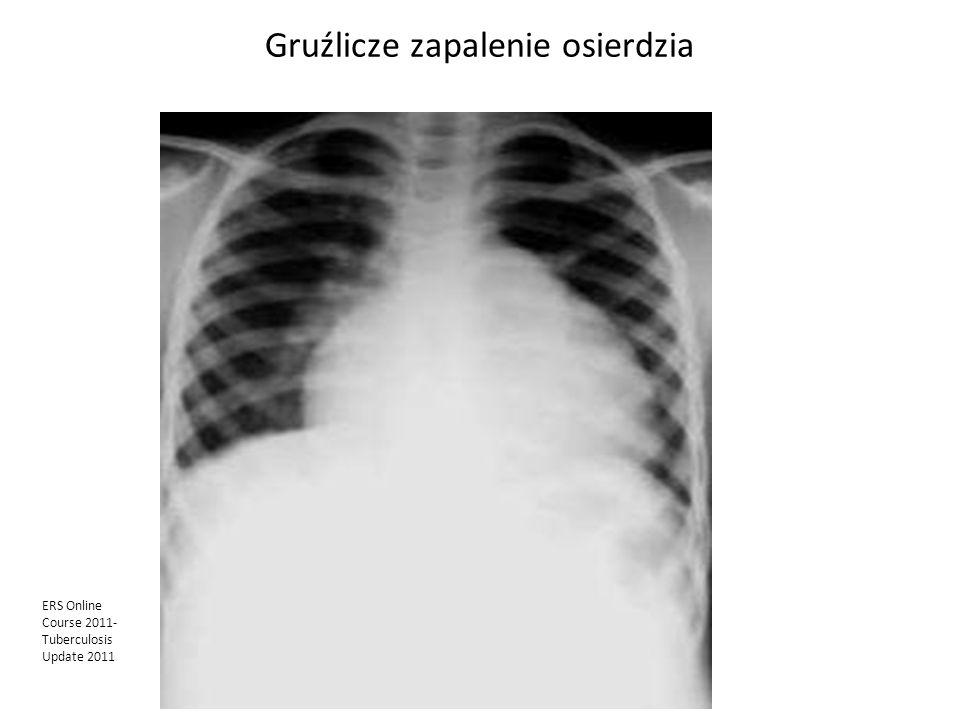 Gruźlicze zapalenie osierdzia ERS Online Course 2011- Tuberculosis Update 2011