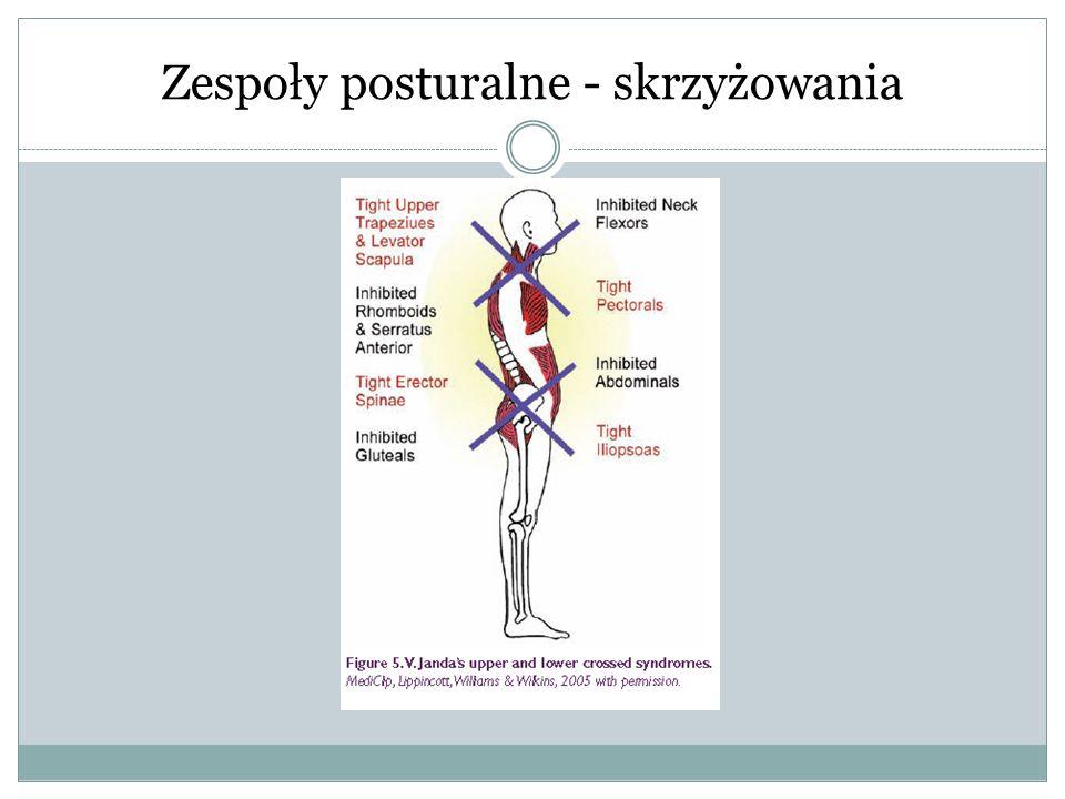 Zespoły posturalne - skrzyżowania