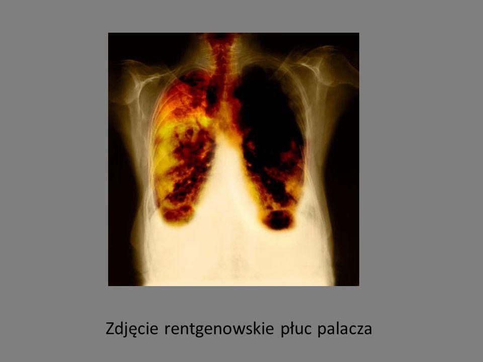 Zdjęcie rentgenowskie płuc palacza
