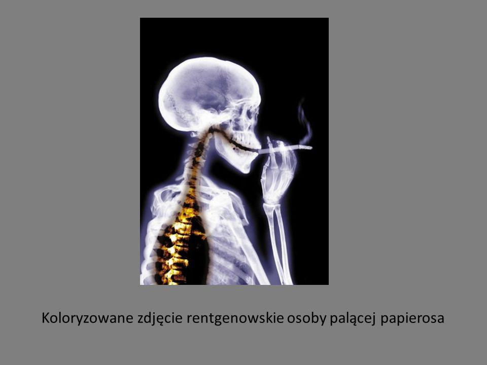 Koloryzowane zdjęcie rentgenowskie osoby palącej papierosa