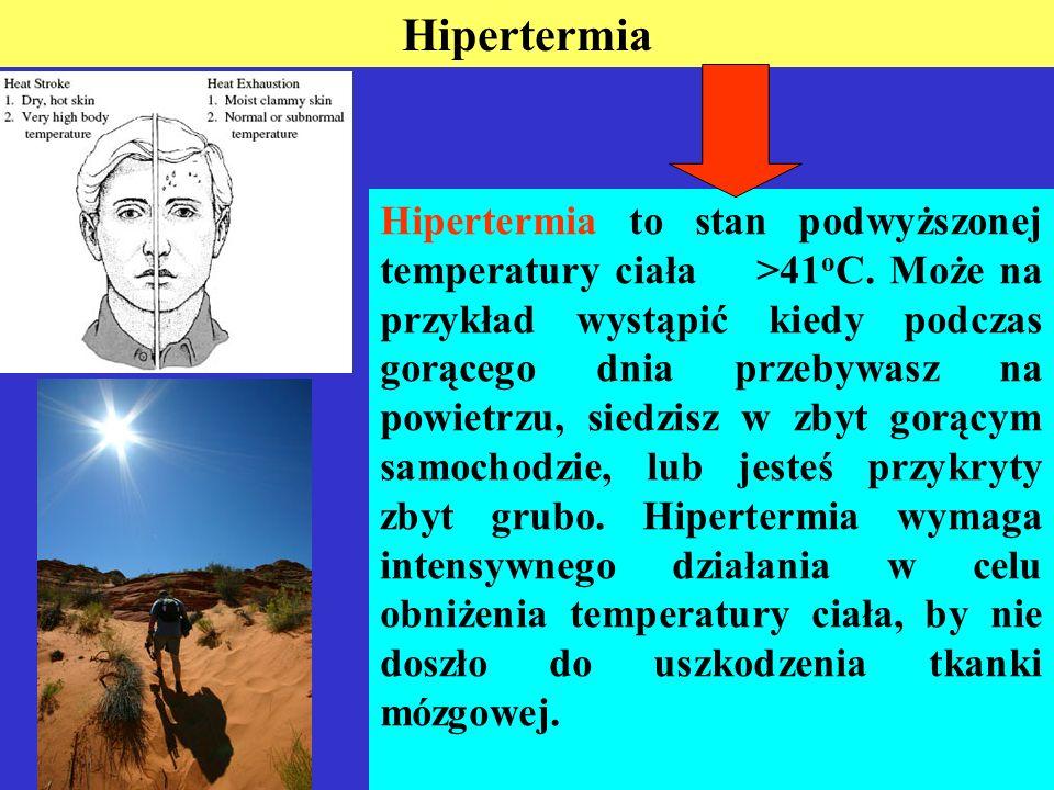 Hipertermia Hipertermia to stan podwyższonej temperatury ciała >41 o C.