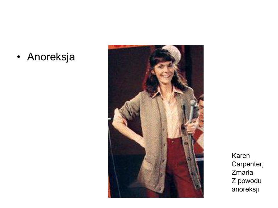 Anoreksja Karen Carpenter, Zmarła Z powodu anoreksji