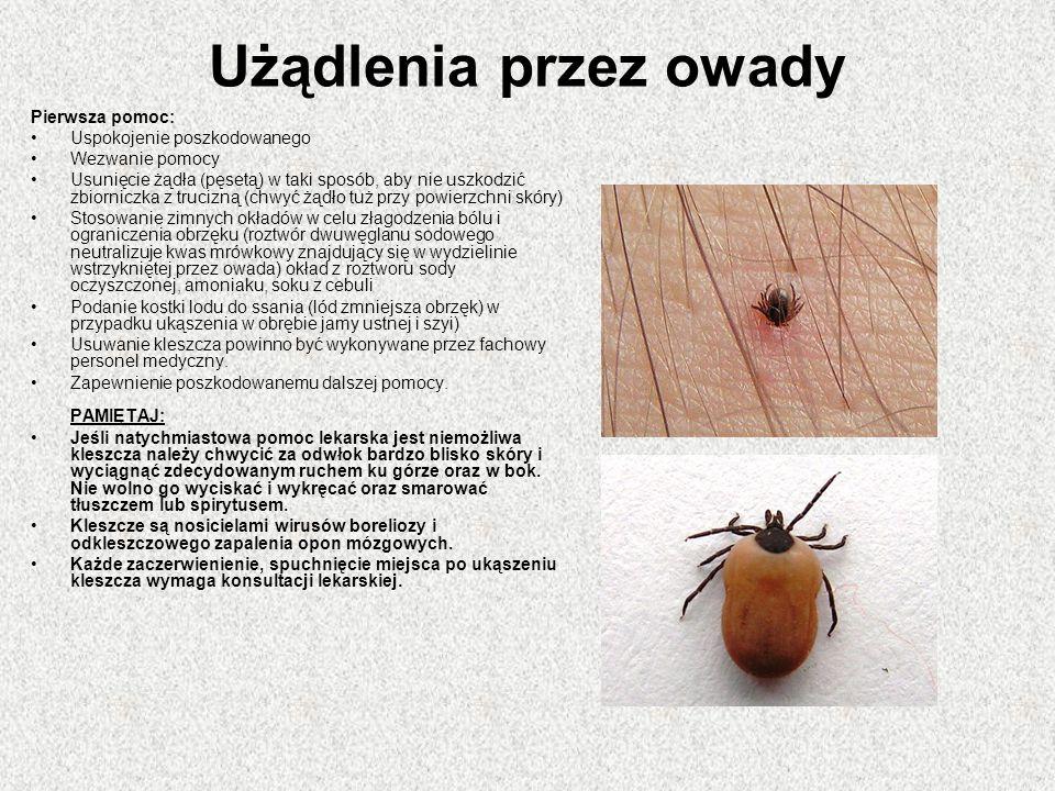 Użądlenia przez owady Pierwsza pomoc: Uspokojenie poszkodowanego Wezwanie pomocy Usunięcie żądła (pęsetą) w taki sposób, aby nie uszkodzić zbiorniczka z trucizną (chwyć żądło tuż przy powierzchni skóry) Stosowanie zimnych okładów w celu złagodzenia bólu i ograniczenia obrzęku (roztwór dwuwęglanu sodowego neutralizuje kwas mrówkowy znajdujący się w wydzielinie wstrzykniętej przez owada) okład z roztworu sody oczyszczonej, amoniaku, soku z cebuli Podanie kostki lodu do ssania (lód zmniejsza obrzęk) w przypadku ukąszenia w obrębie jamy ustnej i szyi) Usuwanie kleszcza powinno być wykonywane przez fachowy personel medyczny.