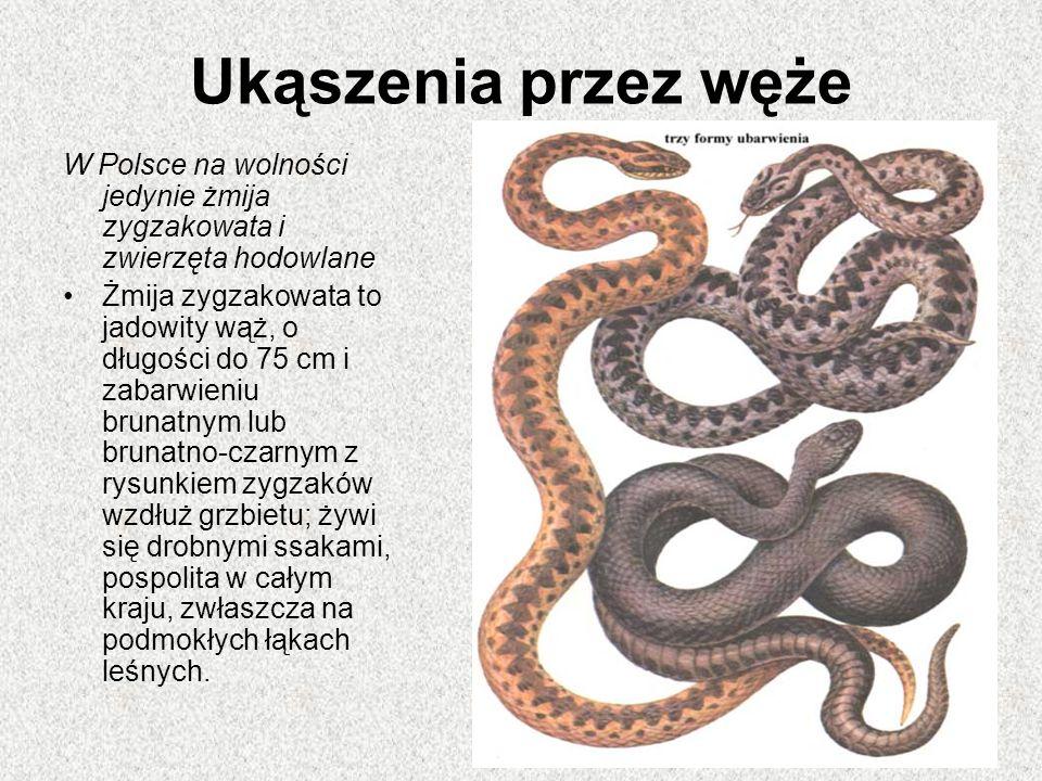 Ukąszenia przez węże W Polsce na wolności jedynie żmija zygzakowata i zwierzęta hodowlane Żmija zygzakowata to jadowity wąż, o długości do 75 cm i zabarwieniu brunatnym lub brunatno-czarnym z rysunkiem zygzaków wzdłuż grzbietu; żywi się drobnymi ssakami, pospolita w całym kraju, zwłaszcza na podmokłych łąkach leśnych.