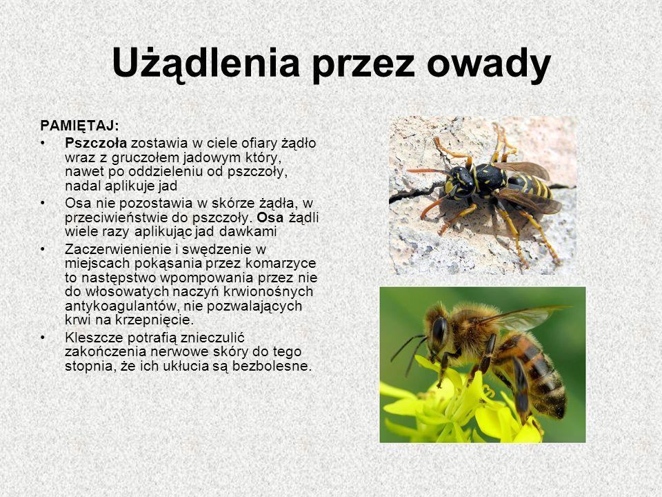 Użądlenia przez owady PAMIĘTAJ: Pszczoła zostawia w ciele ofiary żądło wraz z gruczołem jadowym który, nawet po oddzieleniu od pszczoły, nadal aplikuje jad Osa nie pozostawia w skórze żądła, w przeciwieństwie do pszczoły.