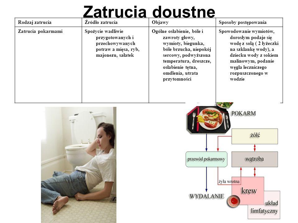 Zatrucia doustne Rodzaj zatruciaŹródło zatruciaObjawySposoby postępowania Zatrucia pokarmamiSpożycie wadliwie przygotowanych i przechowywanych potraw