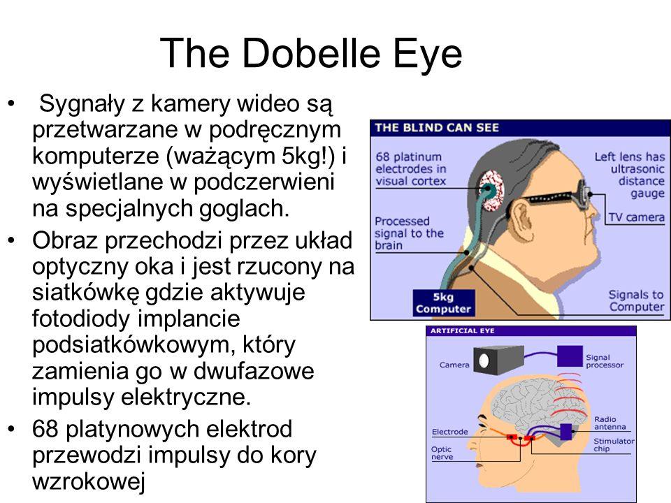 The Dobelle Eye Sygnały z kamery wideo są przetwarzane w podręcznym komputerze (ważącym 5kg!) i wyświetlane w podczerwieni na specjalnych goglach.