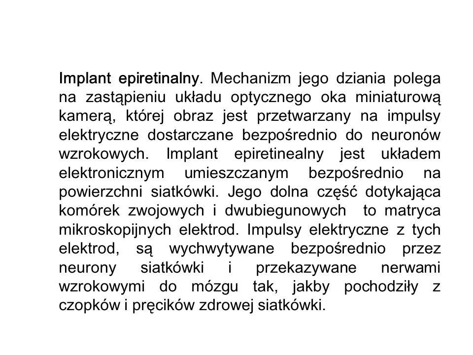 Implant epiretinalny.