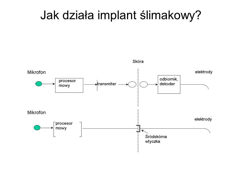 Jak działa implant ślimakowy?