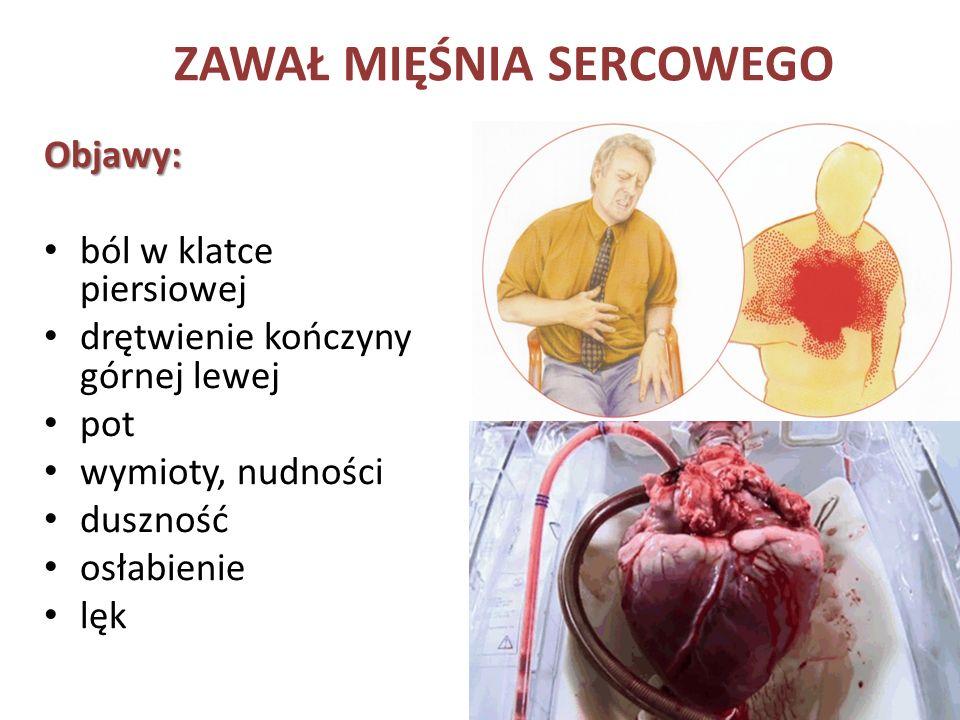 ZAWAŁ MIĘŚNIA SERCOWEGO Objawy: ból w klatce piersiowej drętwienie kończyny górnej lewej pot wymioty, nudności duszność osłabienie lęk