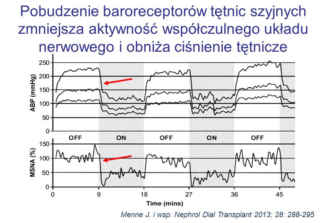 Menne J. i wsp. Nephrol Dial Transplant 2013; 28: 288-295 Pobudzenie baroreceptorów tętnic szyjnych zmniejsza aktywność współczulnego układu nerwowego