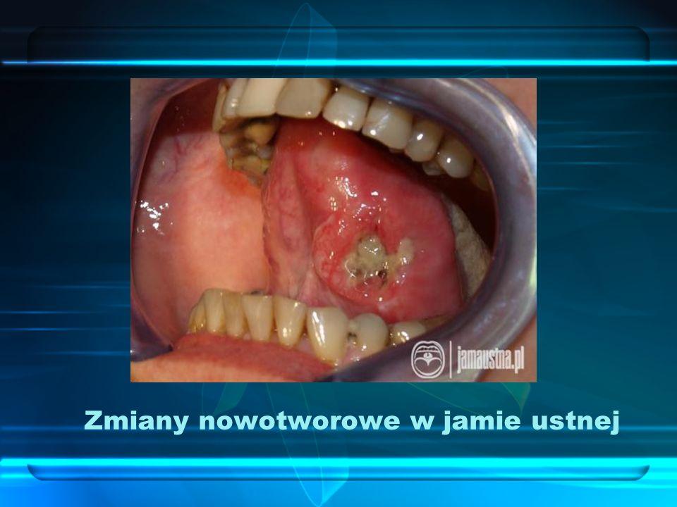 Zmiany nowotworowe w jamie ustnej