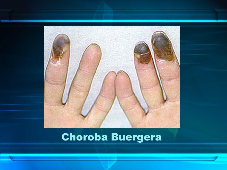 Choroba Buergera