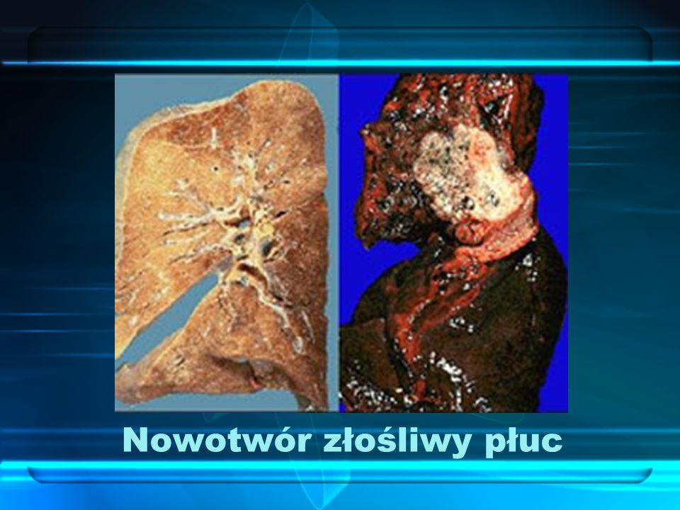 Nowotwór złośliwy płuc