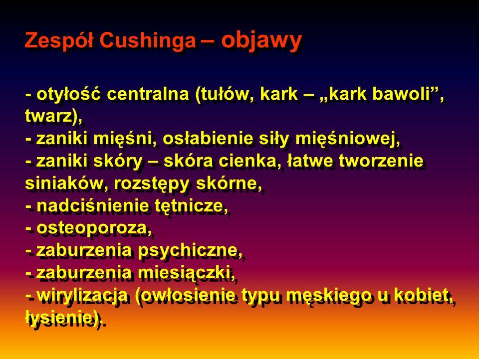 """Zespół Cushinga – objawy - otyłość centralna (tułów, kark – """"kark bawoli"""", twarz), - zaniki mięśni, osłabienie siły mięśniowej, - zaniki skóry – skóra"""