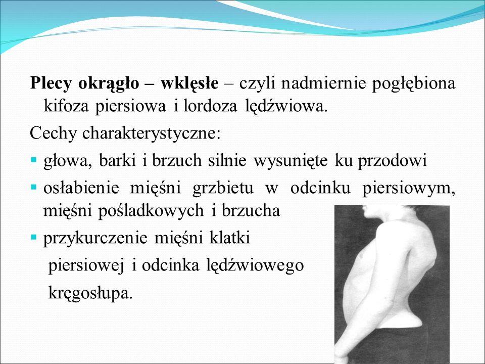 Plecy okrągło – wklęsłe – czyli nadmiernie pogłębiona kifoza piersiowa i lordoza lędźwiowa. Cechy charakterystyczne:  głowa, barki i brzuch silnie wy
