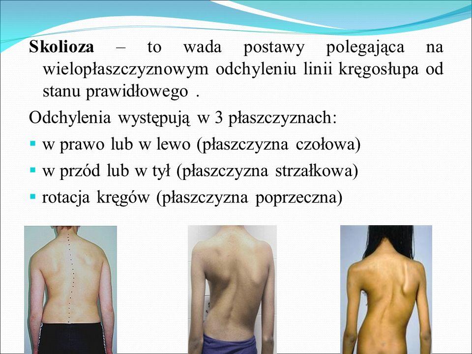 Skolioza – to wada postawy polegająca na wielopłaszczyznowym odchyleniu linii kręgosłupa od stanu prawidłowego. Odchylenia występują w 3 płaszczyznach