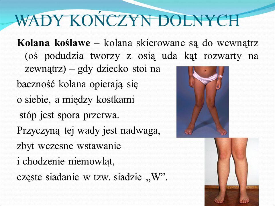 WADY KOŃCZYN DOLNYCH Kolana koślawe – kolana skierowane są do wewnątrz (oś podudzia tworzy z osią uda kąt rozwarty na zewnątrz) – gdy dziecko stoi na