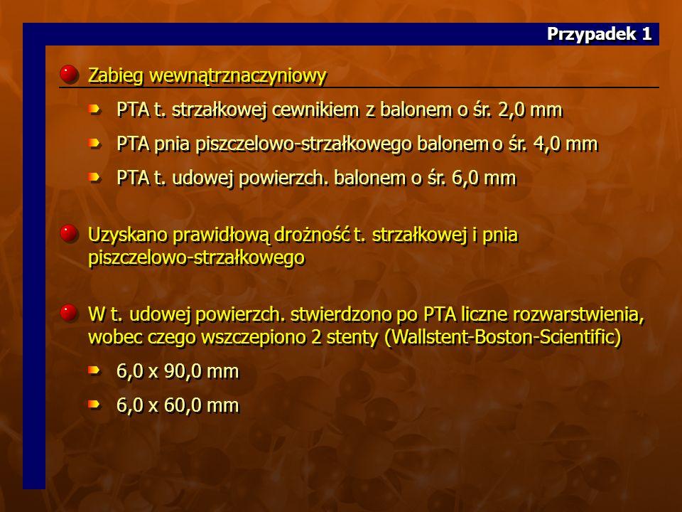 10. (20 z CD A)10. (20 z CD A) Zabieg wewnątrznaczyniowy PTA t.