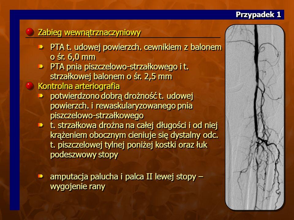 12. (22 z CD A)12. (22 z CD A) Zabieg wewnątrznaczyniowy PTA t.
