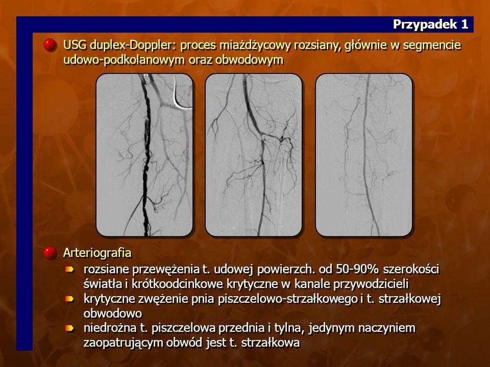10.(20 z CD A)10. (20 z CD A) Zabieg wewnątrznaczyniowy PTA t.