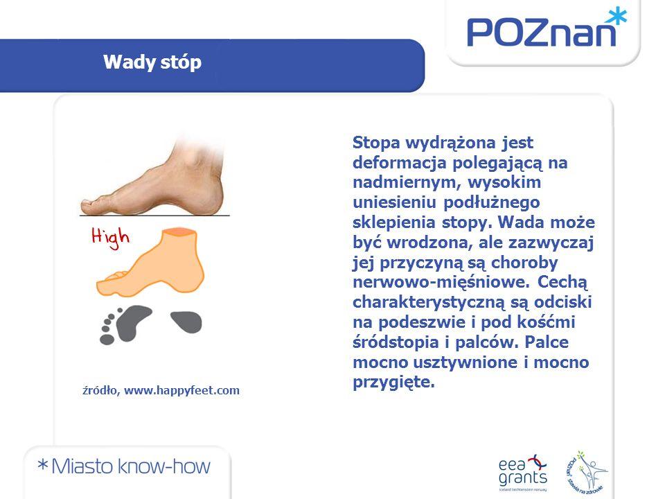 Wady stóp Stopa wydrążona jest deformacja polegającą na nadmiernym, wysokim uniesieniu podłużnego sklepienia stopy.