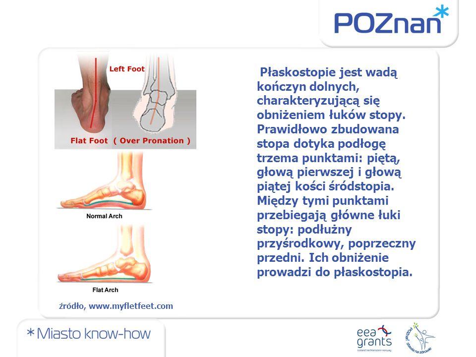 Płaskostopie jest wadą kończyn dolnych, charakteryzującą się obniżeniem łuków stopy.